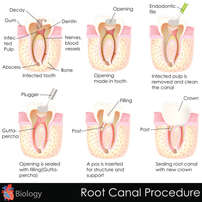 Contact your Tulsa dentist to learn more about root canals.