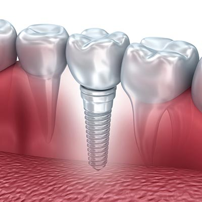 Illustration of a dental implant installed in a person's jawbone.