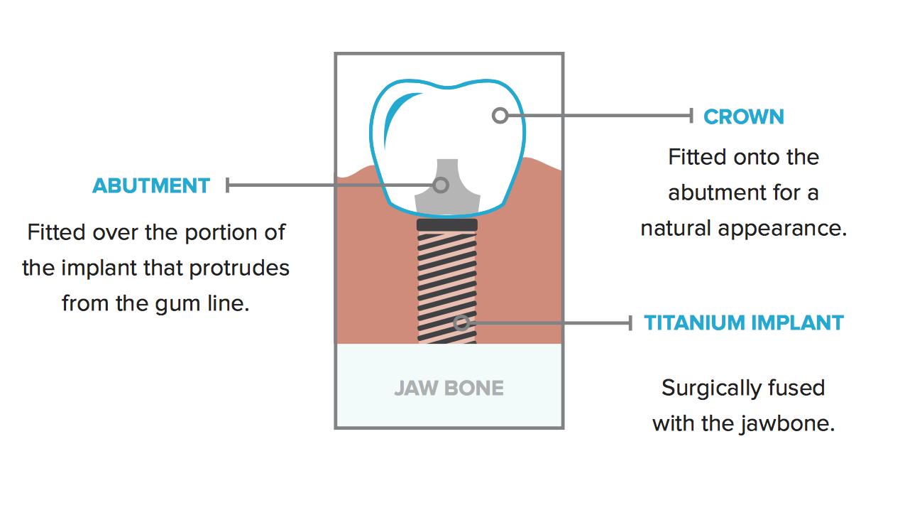 Tulsa Dentists - Dental Implants
