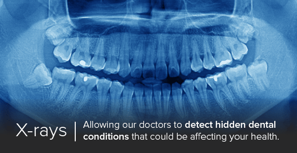 Dental x-rays in Tulsa