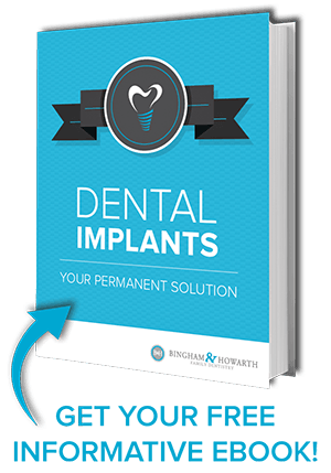Image of e-book cover for dental implants guide.