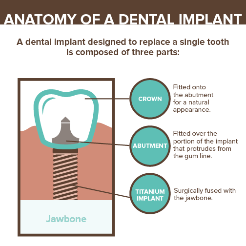 Dental-Implants-Tulsa-Dentist